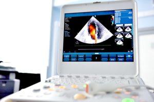 Ultrasound - Fetal Echo
